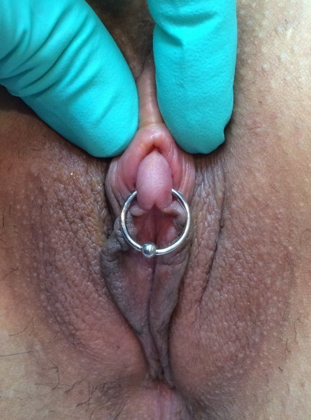 large clitoris